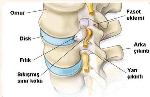 Медианная протрузия диска шейного